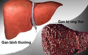 Bệnh ung thư gan có lây không?